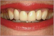 whitening-before